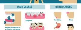 halitosis bad breath