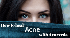 Ayurvedic Acne Remedies
