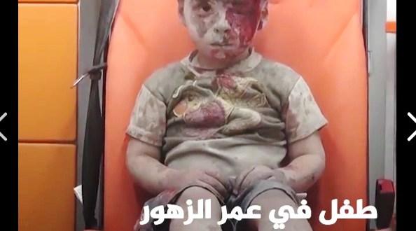 طفل حلب 2