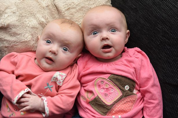 The twins were given just a 10 per cent chance of survival initially (Photo: Mercury Press & Media)