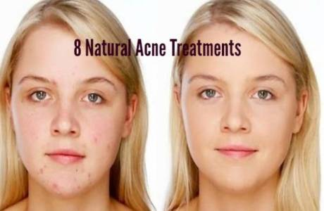 natural_acne_treatment