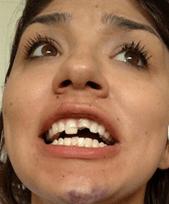 #SanMarcos #Texas Cop Arrested For Slamming Girl Facedown & Breaking Teeth