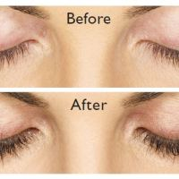 LATISSE Prescription Eyelash Growth Treatment from Allergan