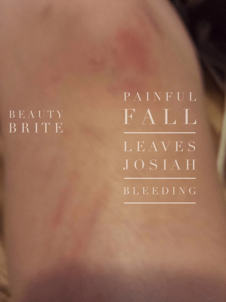 Painful fall