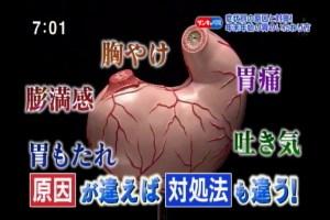 胃トラブル