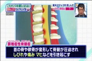 頚椎症脊髄症1