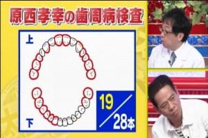 歯周病0-1