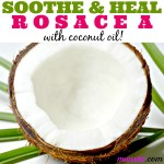 Rosacea Coconut Oil Treatment to Soothe and Heal