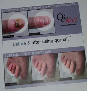 QurNail3