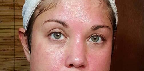 70% glycolic peel 1 immediately after