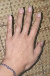 Bionova Hand After