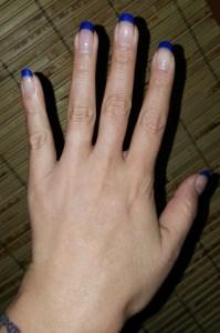 Bionova Hand Before