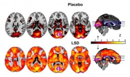 Communication between the visual cortex and other brain regions increases with LSD. Credit: Imperial College London