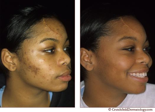 Acne Treatment Biashara Kenya