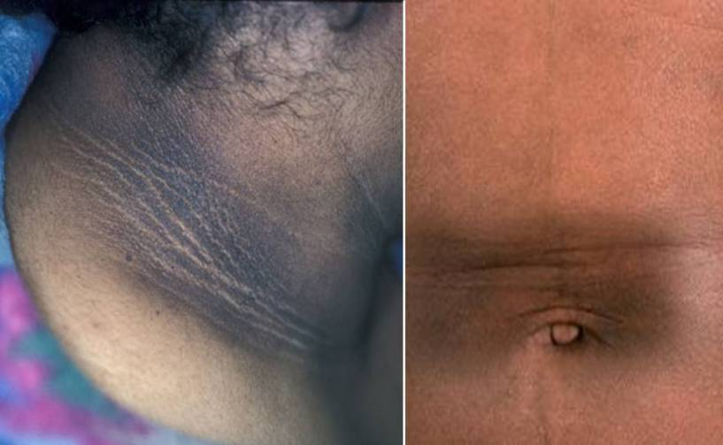 hyperpigmentation-facebook