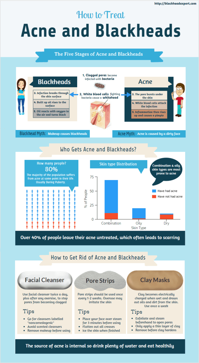 Best blackhead removers infographic