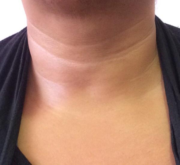 tarte maracuja neck treatment review