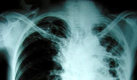【悲報】あくびをした中国人の肺が破裂