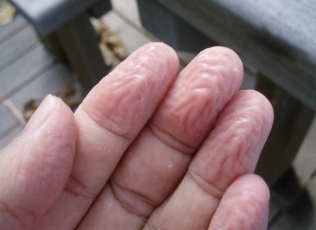 水に入った時、手がふやける理由 … 英国研究者が明らかに