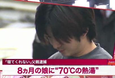 「顔の皮が火傷でめくれた状態」 生後8カ月の長女に熱湯、父親の佐藤哲也容疑者(23)を逮捕 … アルバイトを辞めゲーム三昧、「なんで働かないの?」と言われ妻へも暴力 - 東京・町田