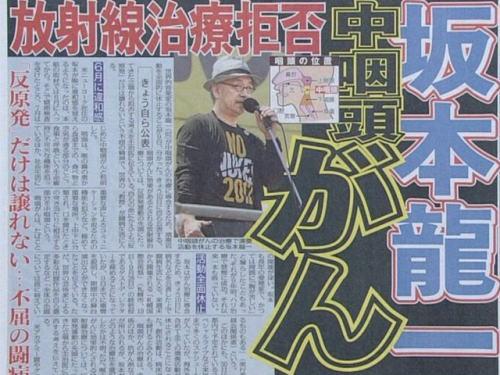 坂本龍一(62)の咽頭癌報道、スポニチの「放射線治療は拒否します」記事は飛ばし記事 … 坂本龍一「読んでないけど。ああいう芸能記事を真に受ける人いるの?」