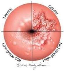 prevenire cancer de col uterin imagini