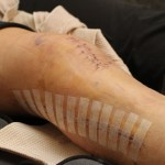LA Fitness member Chrissy stitches after leg surgery from dirt bike accident