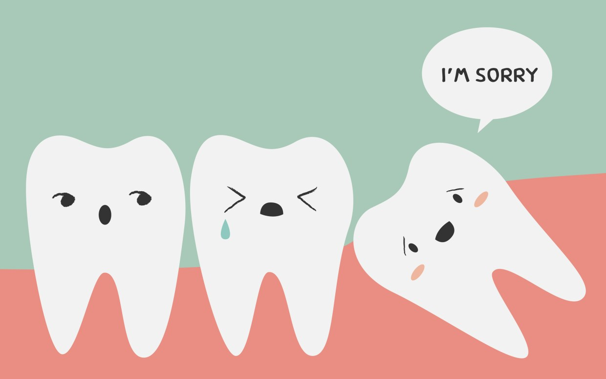 Important Information about Removing Your Wisdom Teeth