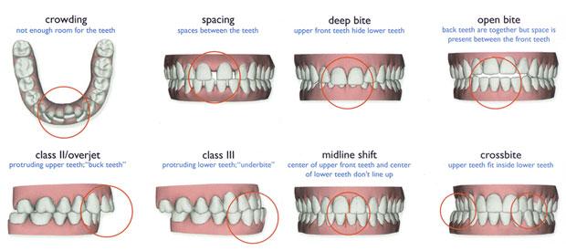 Three Options to Straighten Your Teeth - RankMyDentist.com ...