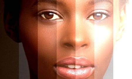 skin-bleaching _