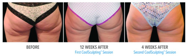 coolsculpting buttocks scottsdale
