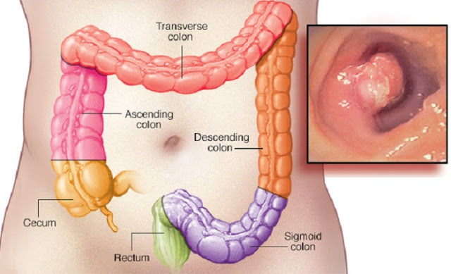 6-early-warning-signs-of-rectum-cancer-everyone-is-too-embarrassed-to-talk-about