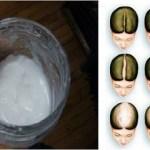 Szódabikarbónás sampon: A hajad gyorsabban fog nőni tőle, mint bármi mástól!