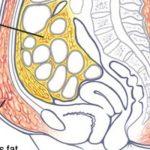 A zsírsejtjeid zárják magukba a mérgeket, így öldd ki ezeket rövid idő alatt