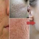 Szeretnél ismét feszes sima bőrt? Ez igazán egyszerű, és még orvoshoz sem kell fordulnod