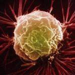 Ezek az élelmiszerek elpusztítják a rákos sejteket és visszahúzódásra kényszerítik a daganatokat
