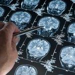 Súper ancianos: agudeza mental más allá de los 80 años