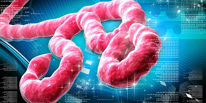 Ebola epidemic: when science is not enough