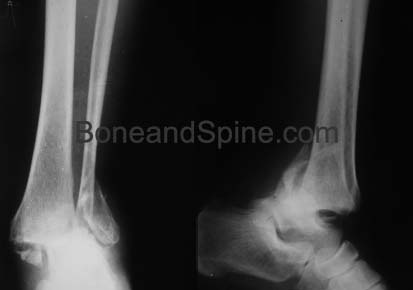 Xrays of Bimalleolar Fracture With Ankle Dislocation