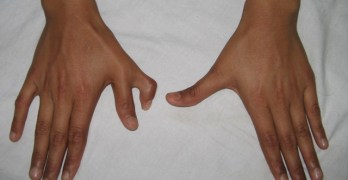 Polydactyly Dorsal-view