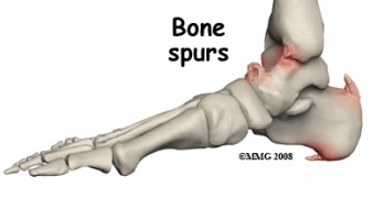 Bone Spur or Osteophyte