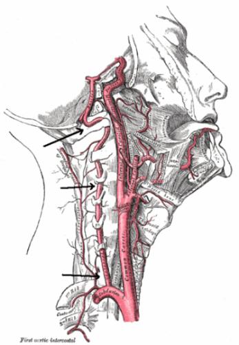 vertebral-artery-course