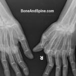 Rheumatoid Arthritis – Diagnosis and Treatment