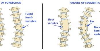 Congenital Scoliosis