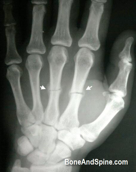 United Metacarpal Fracture With Callus