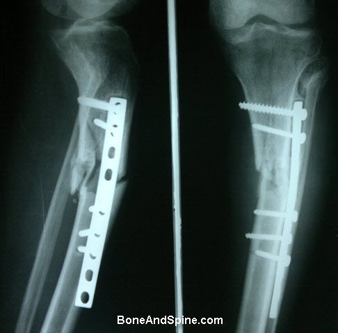 Non Union Fracture of Tibia With Narrow Dynamic Compression Plate