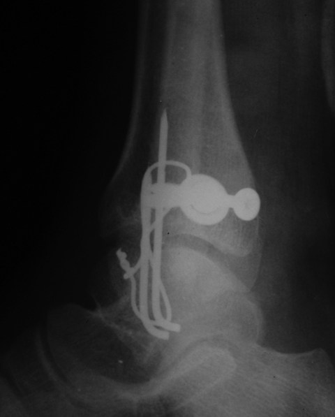 Lateral Postoperative View -Postoperative Xray AP View Bimalleolar Fracture Ankle