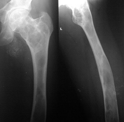 Fibrous Dysplasia Femur Upper End