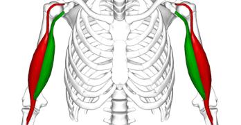 Bicipital Tendonitis or Biceps Tendonitis