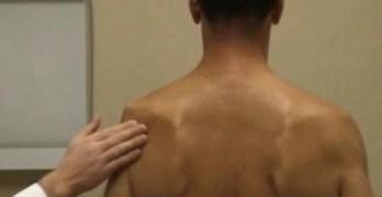 Suprascapular Neuropathy or Infraspiantus Syndrome